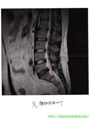 2009_06_20 MRI結果.jpg